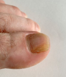 Fungal Nail Treatments Are Available At The North Wood Clinic